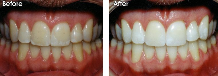 Tooth Whitening