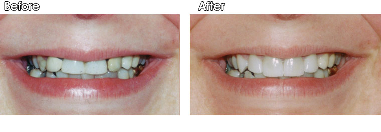 Before- Old, unattractive PFM crowns on this patient's upper front 4 teeth. After- Dr. Jack Hosner of Portage, MI placed four new porcelain crowns.
