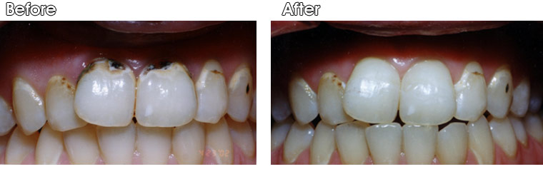 Before-Severe decay on two upper front teeth  After- Dr. Jack Hosner of Portage, MI removed all of the decay and bonded composite fillings to restore natural appearance.