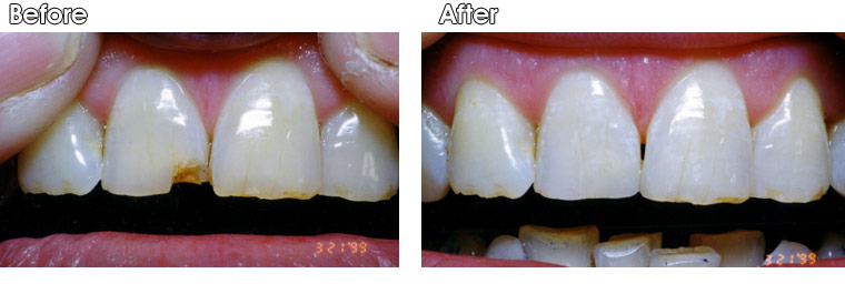 Before- A patient of Dr. Jack Hosner's from Portage ,MI presented with a chipped upper tooth. After- Composite resin was bonded to restore natural appearance.