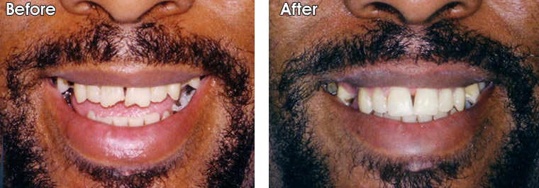Before- This patient fell and fractured his upper front two teeth. After- Dr. Jack Hosner of Portage, MI restored these teeth with bonded composite resin.