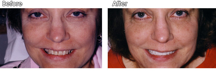 Before- This patient of Dr. Jack Hosner's from Portage, MI  did not like the crooked and stained appearance of her teeth and she did not want orthodontics (braces). After-  Porcelain crowns and veneers were placed to whiten and straighten this patient's smile.