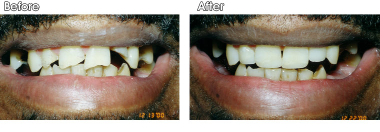 Before- This Portage, MI patient fell and fractured his front 4 teeth. After- They were restored back to natural appearance with bonded composite resin by Dr. Jack Hosner.