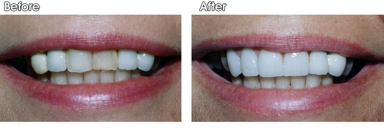 Before- This patient didn't like the staining or shape of the two front teeth, nor the shape and color of the two teeth to the left. After- Dr. Jack Hosner of Portage, MI placed four porcelain crowns on these teeth to improve color and shape.