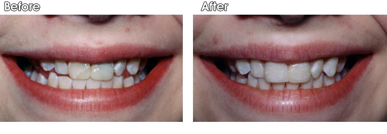 Before- Crooked front teeth with large composite tooth colored fillings. One of these teeth also had root canal treatment which further weakened the tooth. After- Dr. Jack Hosner of Portage, MI placed two porcelain crowns on these 2 front teeth to protect them from fracture, and also to straighten and improve esthetics.