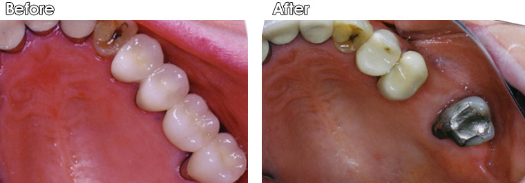 Before- Missing tooth surrounded by heavily restored and weak teeth. After- A porcelain fused to metal bridge and a single porcelain fused to metal crown were placed by Dr. Jack Hosner of Portage, MI to restore this area.
