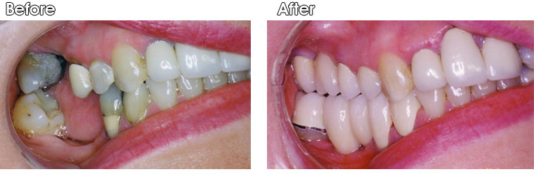 Before-This patient of Dr. Jack Hosner's from Portage, MI is missing one upper back tooth and two lower back teeth. After-One upper 3-unit porcelain fused to metal (PFM) bridge and one lower 4-unit PFM bridge were cemented into place.