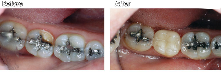 Before- This patient of Dr. Jack Hosner's from Portage, MI broke a quarter of her tooth off to the gum line. The other quarter next to it was cracked and also ready to break off. After- The old, defective silver filling was removed, tooth was cleaned, and a new porcelain onlay was bonded to the broken and weak part of the tooth.