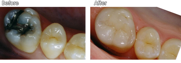 Before- Large defective silver (amalgam) filling with a very thin and weak upper left corner of tooth subject to fracture. After- Dr. Jack Hosner of Portage, MI removed old amalgam, cleaned tooth and bonded a porcelain onlay to protect upper left corner from fracturing.
