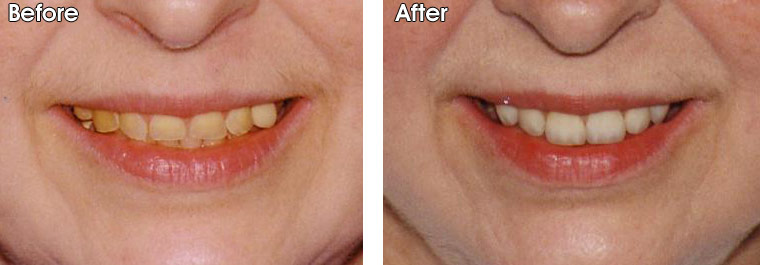 Before- Very short and worn/eroded, dark ,yellow teeth After- Porcelain crowns were placed by Dr. Jack M. Hosner, DDS of Portage, MI to protect teeth from further erosion and to provide a better smile.