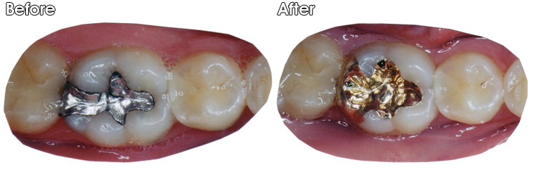 Before- Cracked and leaking old silver filling. After- Filling was replaced with a gold onlay by Dr. Jack Hosner of Portage, MI.