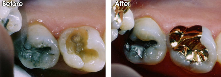 Before- Large cavity was cleaned out by Dr. Jack Hosner of Portage, MI. After- The tooth was restored with a gold onlay.