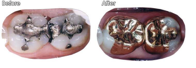 Before- Large and defective silver fillings with decay around them. After- Dr. Jack Hosner of Portage, MI restored teeth with gold onlays.