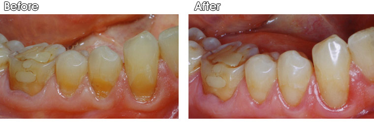 Before- This patient has moderate tooth wear/erosion on three teeth at the gum line. After- Tooth colored fillings were bonded to these defects by Dr. Jack Hosner of Portage, MI to restore lost tooth structure and protect from further destruction.