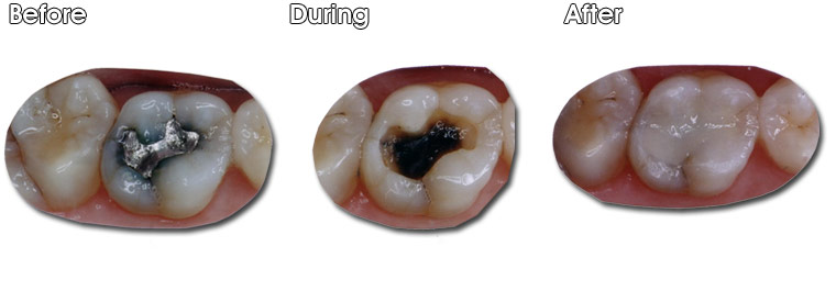 Before- This patient didn't like the dark gray appearance of this amalgam filling. During- Dr. Jack M Hosner, DDS of Portage, MI removed the old amalgam filling and decay. Notice how the old amalgam filling has stained the tooth darker. After- A new directly bonded composite resin filling was placed.
