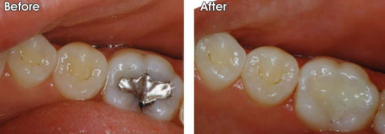 Before-Recurrent decay around an old amalgam (silver) filling After- Decay was cleaned up and a new tooth colored filling was bonded into the tooth by Dr. Jack M. Hosner, DDS of Portage, MI.