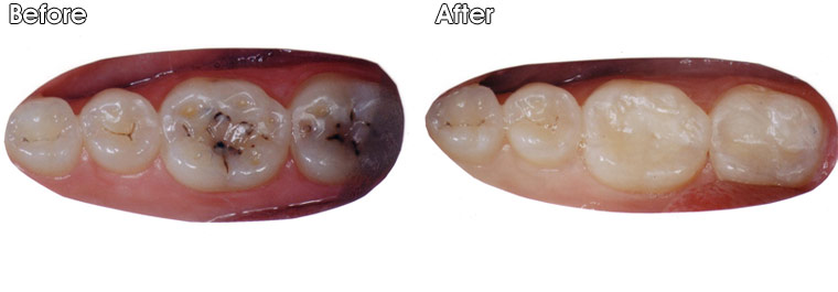 Before- Decay (cavities) and holes of wear/erosion on these two molars After- Decay was removed, and bonded tooth colored fillings were placed by Dr. Jack Hosner of Portage, MI to restore decayed and worn tooth structure.