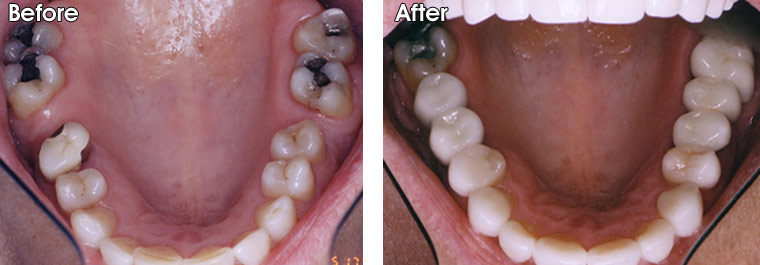 Before- This patient presented with two missing teeth. A third tooth next to the space on the left was removed also. After- Two implants were placed by an oral surgeon on the left. Dr. Jack Hosner of Portage, MI placed two porcelain fused to metal crowns over the implants to replace these two missing teeth. On the right side, a porcelain fused to metal bridge was placed by Dr. Hosner.