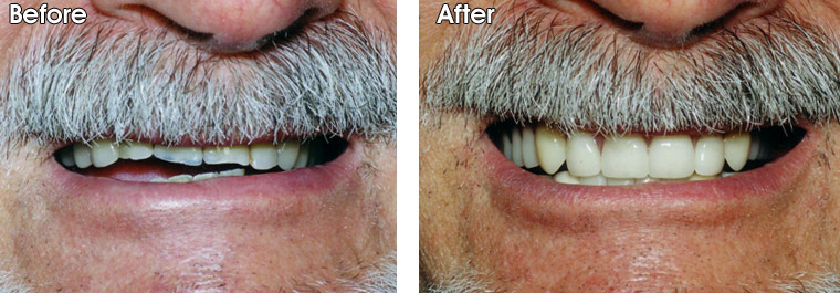 Dr. Jack Hosner fabricated a new upper denture to replace the old worn one, and built up the lower teeth with bonded fillings and porcelain crowns. A new lower removable partial denture was made to replace the lower back teeth.