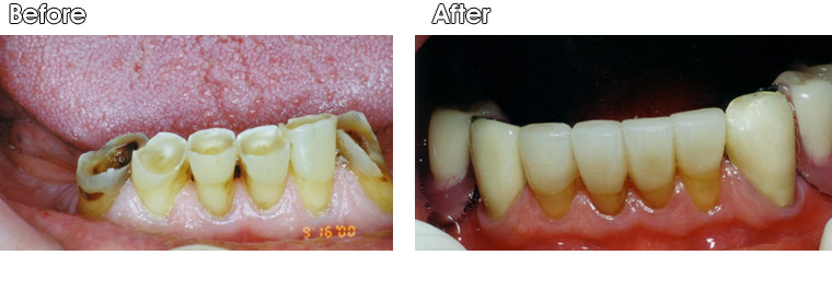 Before- Badly worn and eroded lower teeth. After- Dr. Jack Hosner of Portage, MI, restored front four teeth with porcelain crowns. He placed porcelain fused to metal crowns on the other two outside teeth and delivered a lower partial denture to restore the missing back teeth.