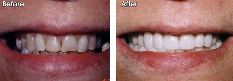 Dr. Jack Hosner placed porcelain crowns and veneers to whiten and straighten the patient's smile.