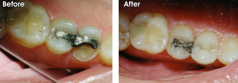 Before- This patient broke half of his tooth off. After- Dr. Jack Hosner of Portage, MI restored tooth with a porcelain crown.