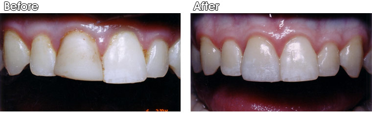 Before- Old and dull composite resin filling on front tooth with poor shape. After- Dr. Jack Hosner of Portage, MI placed one porcelain crown to improve appearance and protect tooth from fracture.