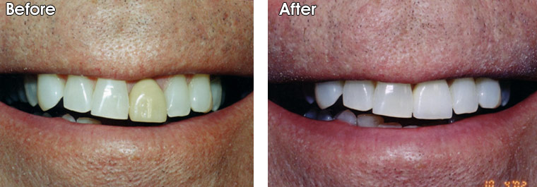 Before- This patient of Dr. Jack Hosner's from Portage, MI did not like the discolored and poorly shaped front porcelain crown. After- The new porcelain crown really improves appearance of smile.