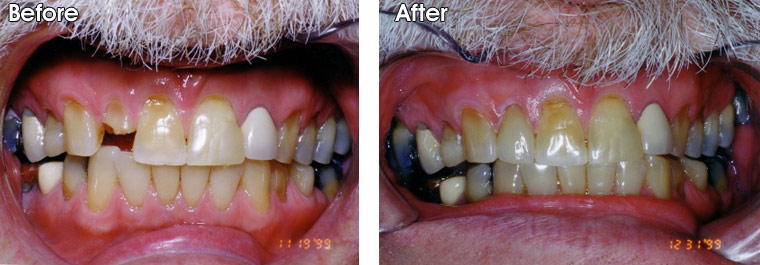 Before- Broken tooth. After- Dr. Jack Hosner of Portage, MI restored this tooth with a porcelain crown.