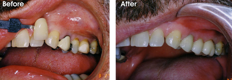 Before- This patient has three teeth he wants restored. One has an old porcelain fused to metal crown on it that shows a dark, unsightly line near the gums. The other two are heavily restored with fillings, and the teeth are weak and subject to fracture. After- Dr. Jack Hosner of Portage, MI placed porcelain crowns on these teeth to protect them from fracture and to improve their esthetics.