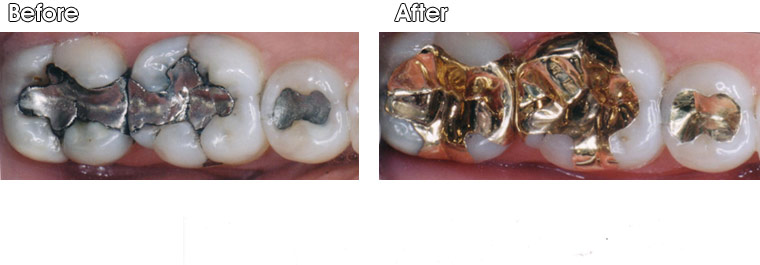 Before- Recurrent decay around old defective silver fillings. After- Dr. Jack Hosner of Portage, MI restored the back two teeth with gold onlays. He placed a gold inlay on the other tooth.