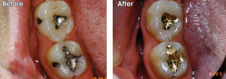 Before- Old, failing amalgam (silver) fillings with recurrent decay around them. After- Dr. Jack Hosner of Portage, MI replaced them with gold inlays.