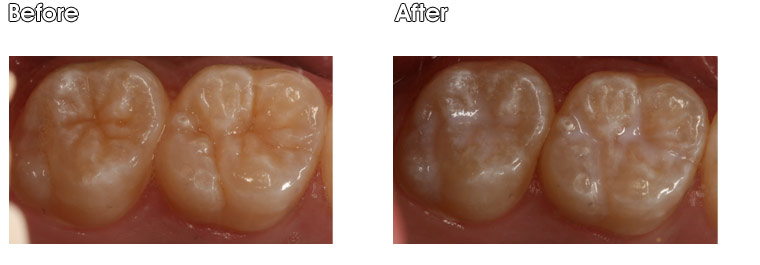 Upper Sealants Before- Two molars with deep anatomical grooves at risk for decay. After- Two sealants were placed at the office of Dr. Jack Hosner of Portage, MI to fill in grooves and protect teeth from decay/cavities.