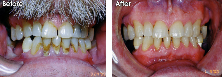 Before- This patient suffers from periodontal disease. You can see the severe tartar and stain build-up. After- After a scaling and rooting by Dr. Jack Hosner's hygienist in Portage, MI, the soft tissue has been restored to health and the teeth are clean. These teeth need to be professionally cleaned every three months to maintain good soft tissue health.