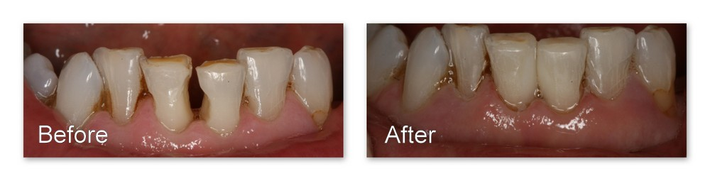 Before- This patient does not like the shapes of his lower front teeth and the resultant gap. After- Dr. Jack M. Hosner of Portage, MI restored proper shape to these teeth and eliminated the gap in one appointment by bonding composite resin.