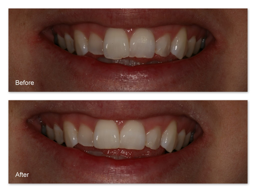 Dr. Jack Hosner re-contoured the 'bumpy' and uneven front teeth.