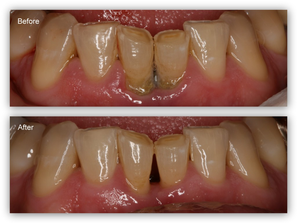 Before- This patient has periodontal disease with severe tartar and stain build-up. After- The hygienist at Dr. Jack Hosner's Portage, MI dental office cleaned the teeth (a cleaning called scaling and root planing), and the tissue is now healthy. Regular periodontal maintenance cleanings are necessary to maintain this as healthy tissue.