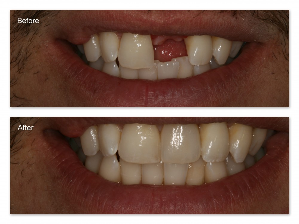 Dr. Jack Hosner replaced the missing tooth with a dental implant and restored it with a porcelain crown.