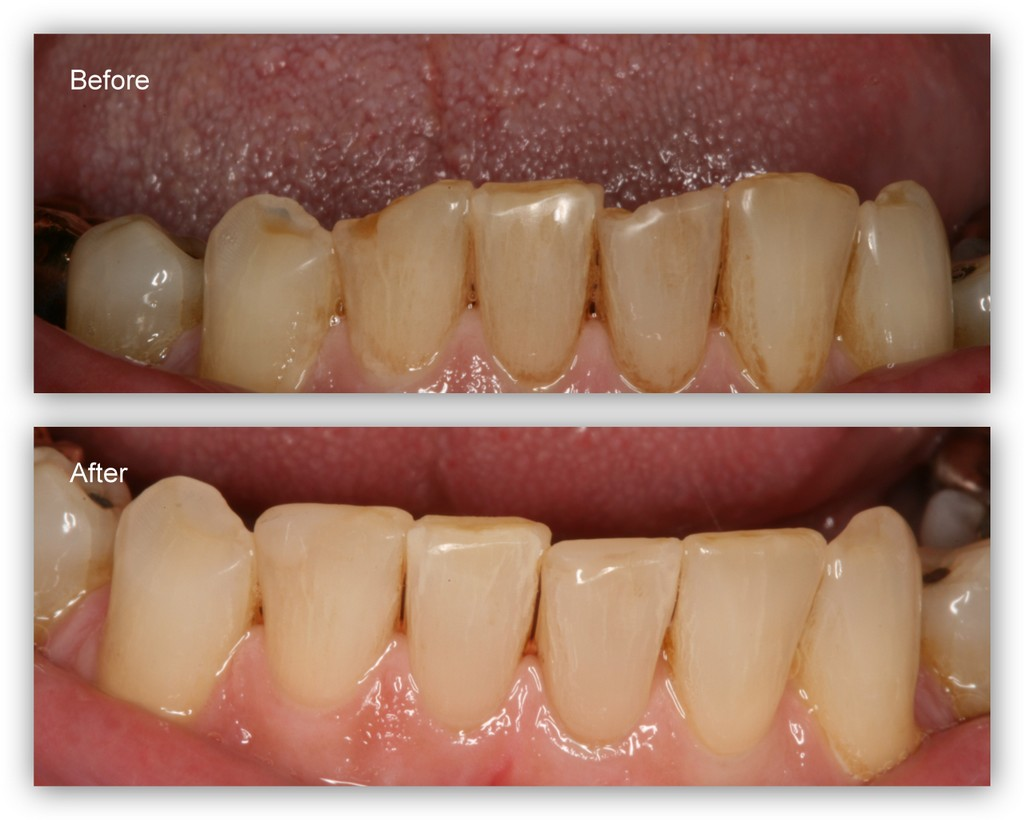 Before- This patient has moderate to severe wear/erosion on his lower front teeth. After- Dr. Jack Hosner of Portage, MI bonded composite resin to these teeth to restore, shape, and protect from further wear.