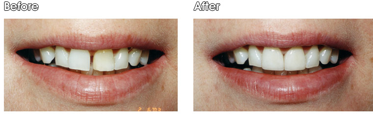 Before- This patient did not like the gap between her two front teeth or the darkness of the tooth on the right. After- Dr. Jack Hosner of Portage, MI placed a porcelain crown on the dark tooth and a porcelain veneer on the other to satisfy aesthetics.