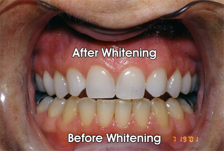This patient only bleached her top teeth.