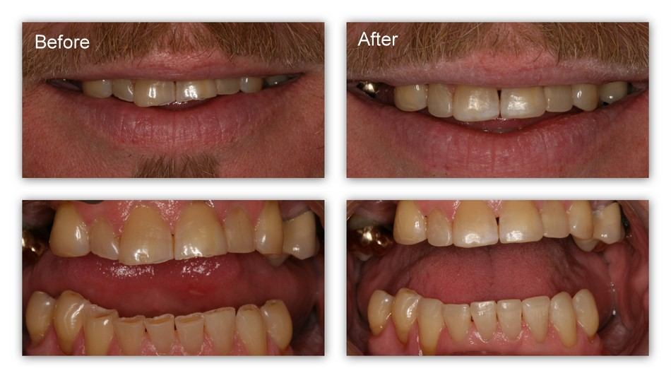 Before- This patient has worn/eroded teeth. After- Dr. Jack Hosner of Portage, MI bonded these teeth with composite resin thus protecting them from further wear and erosion. This greatly improved the appearance of the teeth as well.