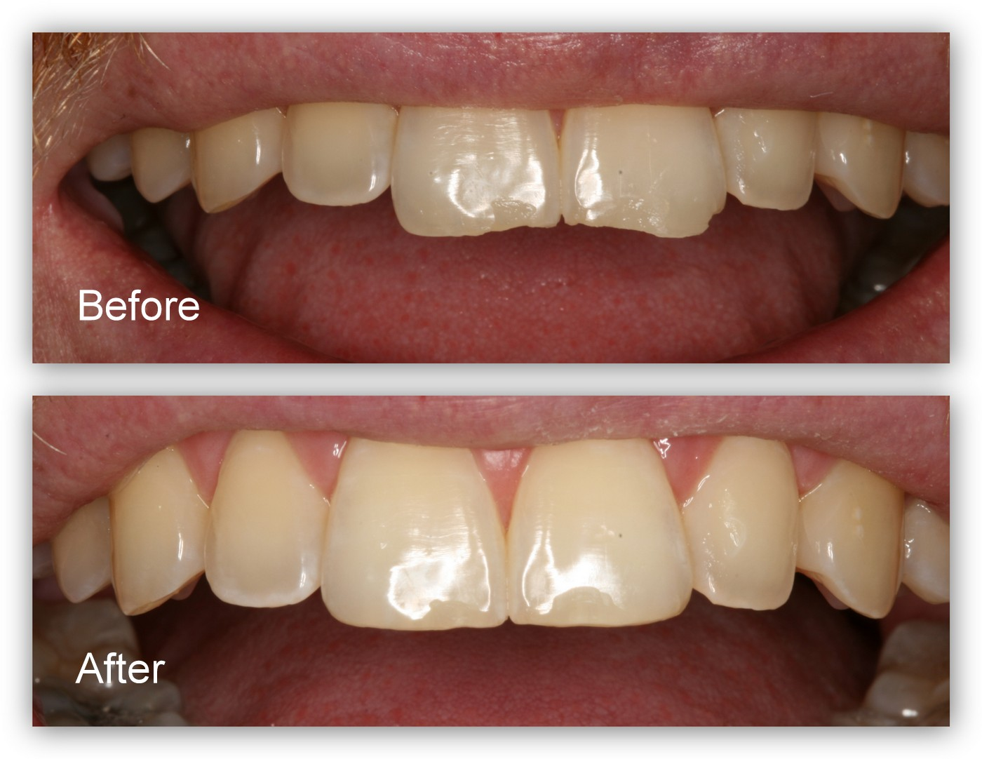 Before- This patient presented to Dr. Jack Hosner of Portage, MI with chipped and worn two front teeth. After- Dr. Hosner reshaped and polished the edges to create better esthetics.