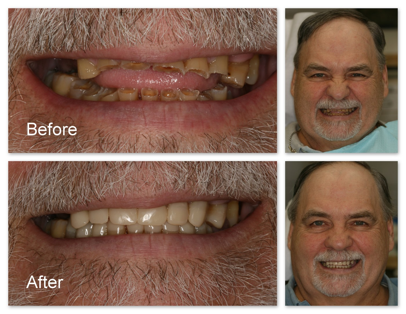 Before- This patient suffers from severe erosion of his teeth. After- Dr. Jack Hosner of Portage, MI bonded composite resin tooth colored restorations to restore and protect all of his worn teeth which greatly improved his overall esthetics. and cost less than half of porcelain crowns.