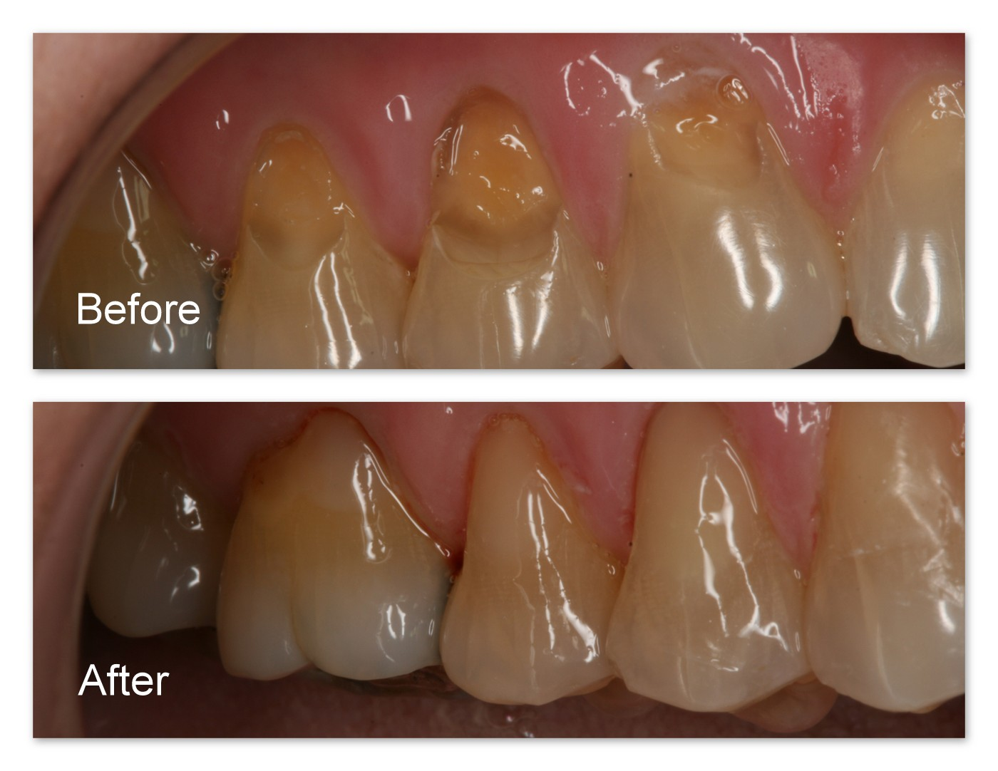 Before- Extremely worn/eroded teeth. After- Immediately after restoration by Jack Hosner of Portage, MI.