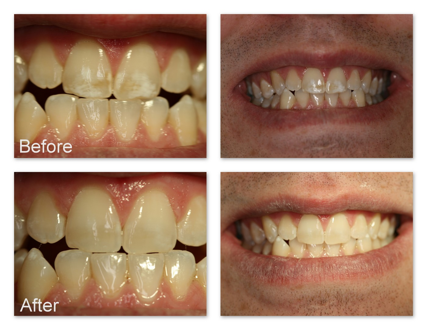 Before- This patient didn't like the brown and white spots on his teeth. After- Dr. Jack Hosner of Portage, MI removed the stains in a few minutes comfortably without anesthetic.