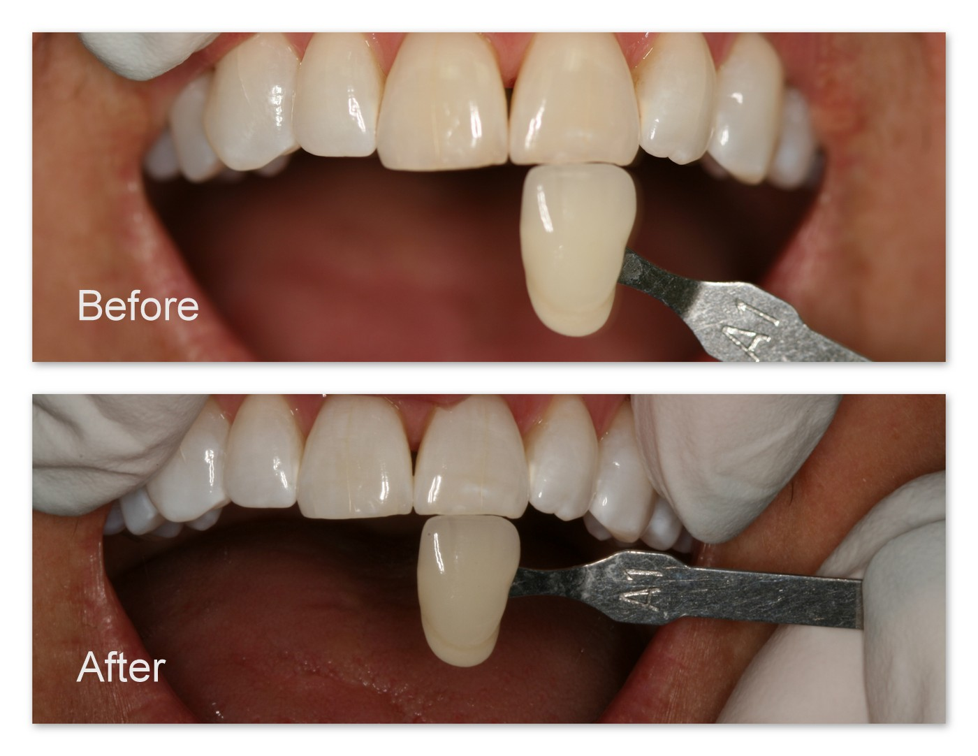 Before- Before Whitening. After- After Tooth Whitening. Notice the difference in the color of the teeth now and the shade tab.