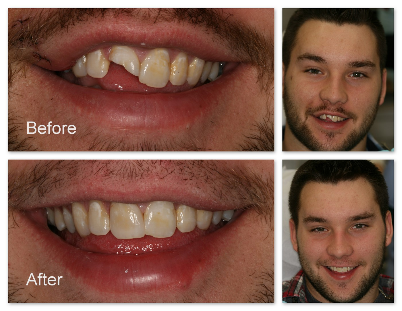Before- This young man was in an accident which caused the fracture of his front teeth. After- Dr. Jack Hosner of Portage, MI restored this tooth with a porcelain crown which was custom stained to match his other natural teeth.