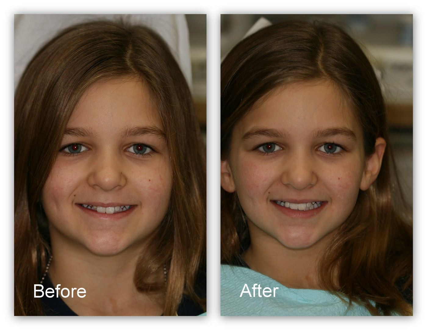 Before- This young patient has an unusually small tooth to the left of her two front teeth. After- Dr. Jack Hosner of Portage, MI built up this tooth and shaped it to be more visible in her smile.