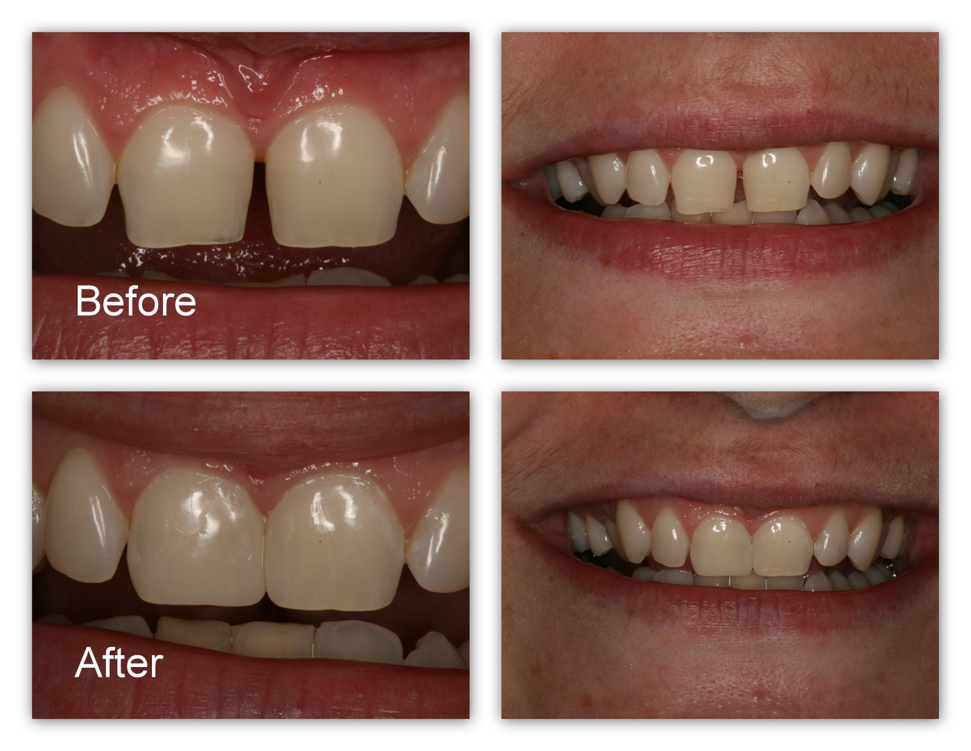 Before- This patient didn't like the shapes of her two front teeth or the space between them. After- Dr. Jack Hosner of Portage, MI bonded tooth colored material to reshape the teeth and close the gaps.
